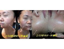 高雄做臉今天來分享.去找更好的品質藻晶煥膚.來做我的肌膚痘痘還˙我年輕
